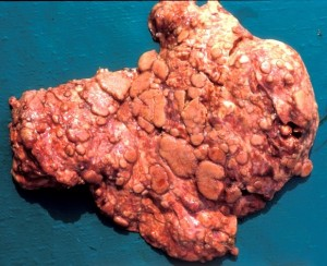Bovine, lung. Lung parenchyma is almost entirely replaced by variably-sized, coalescing, raised pale nodules.